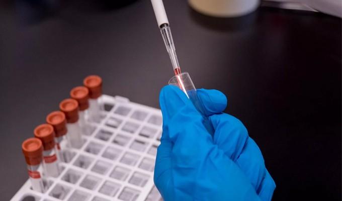 Vacina de Harvard contra a COVID-19 mostra eficácia em macacos e avança