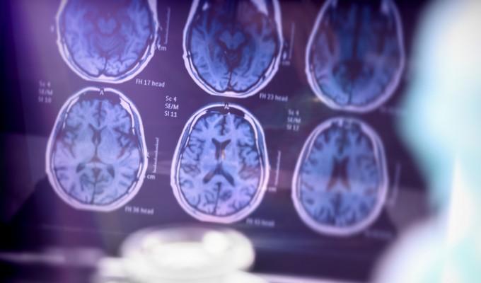 Pesquisa identifica substância que pode interromper perda de memória do Alzheimer