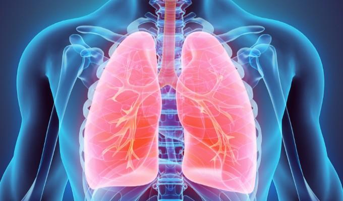 Tepotinibe: o novo aliado contra o câncer de pulmão