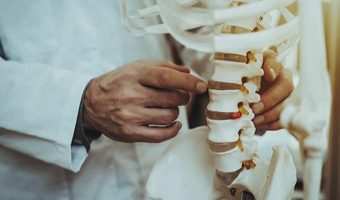 Primeiro transplante de vértebra da história da medicina é feito na Itália